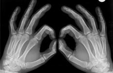 Vous souffrez du syndrome du masque d'aviateur avec les doigts