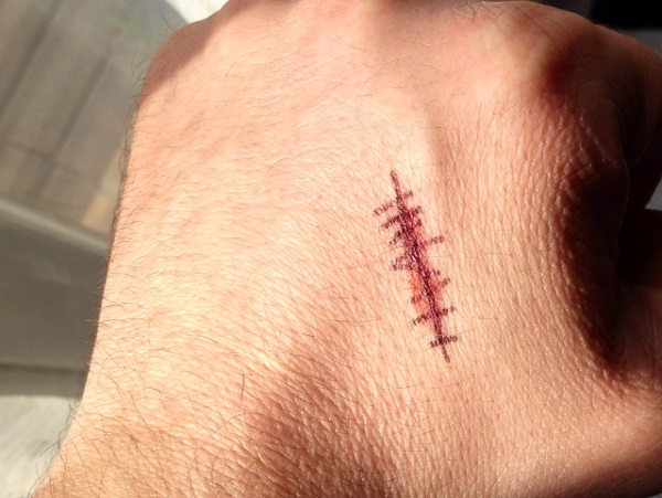 Cicatrice Till